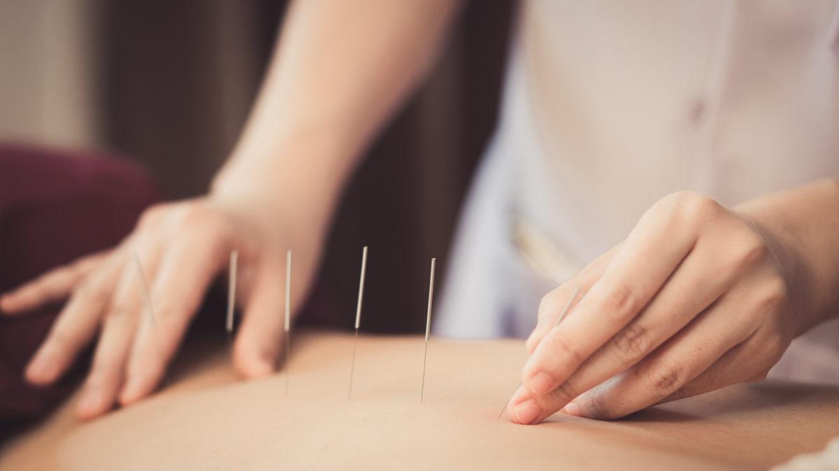 L'acupuncture est efficace contre les bouffées de chaleur