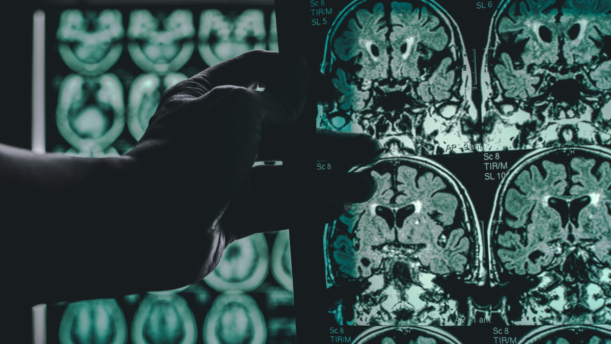 Gagnez 11ans de cerveau