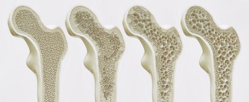 Ostéoporose : l'autre « tueur silencieux »
