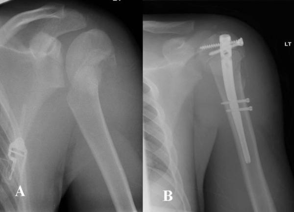 Fracture de l'épaule