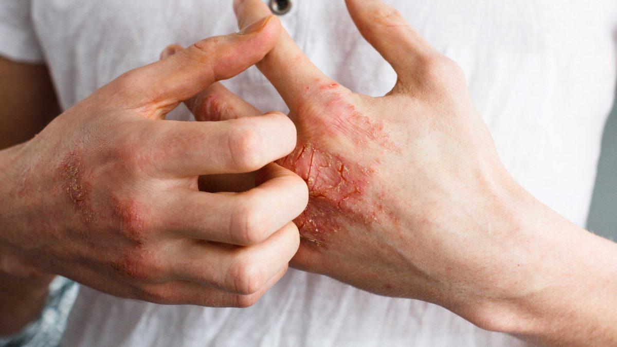 Psoriasis : les traitements actuels peu efficaces